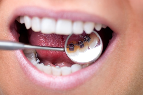Female patient showing her invisible lingual braces braces on dental mirror